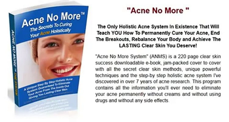 Acne No More Review – Does Mike Walden's Program Work?